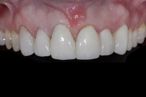Susan Braces Extrusion X1 0030