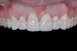 Susan Braces Extrusion X1b 0033