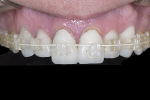 Susan Braces Extrusion X3 0257