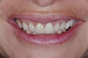 Susan Gummy Smile S B4 _DSC8417