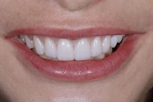 Susan Gummy Smile S Post _DSC0365