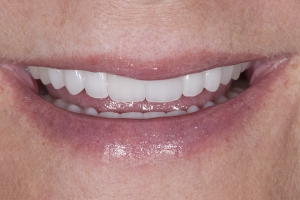 Susan Full Mouth S After 4543b