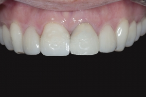 Susie X121U Grey Tooth Crown  Before 0380