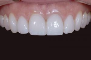 Susie X121U Grey Tooth Crown After 3470