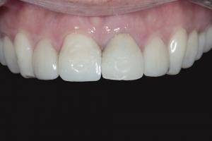 Susie-X121U-Grey-Tooth-Crown-Before-0380
