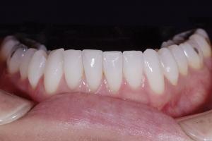 Susie-Straighten-Lowers-X121L-Post-_4KL9021