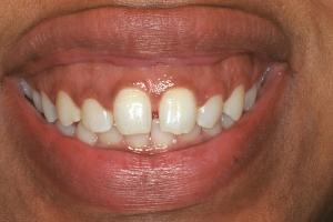Tamika Veneers & Gum Lifts S B4