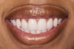 Tamika Veneers & Gum Lifts S Post Jpeg
