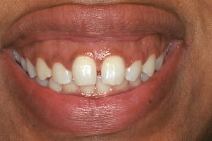 Tamika Gummy Smile S  Before