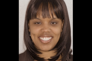 Tamika Veneers F Post copy