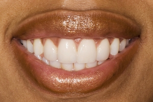Tamika Veneers S Post2
