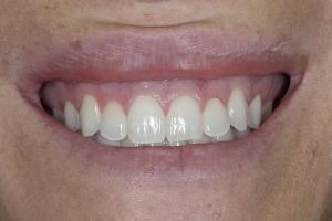 Teresita Laser Teeth Whitening S B4 8152