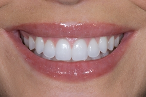 Teresita Laser Teeth Whitening S Post