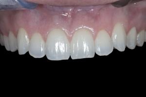 Teresita X121 Whitening & Bonding  Before 8154