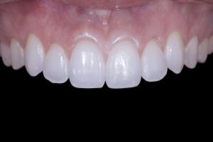Teresita Gum Leveling Macro Post 0934