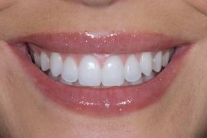 Teresita Gum Leveling S Post