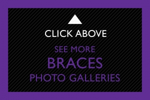 22-Click-Above-Braces