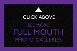 22-Click-Above-Full-Mouth
