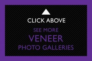 22-Click-Above-Veneer