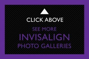 22-Click-Above-Invisalign