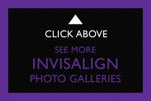 22-Click-Above-Invisalign