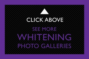 22-Click-Above-Whitening