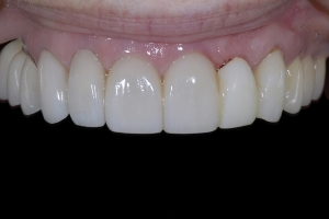 Therese Implant Temporary X6 0585