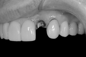 Therese Implant Bone Graft Bone K Bone Graft 1 0412