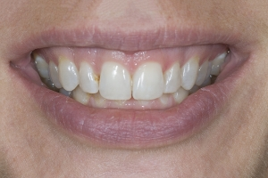 Tina Teeth Whitening S B4 0120