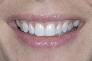 Tina Teeth Whitening S Post 0001