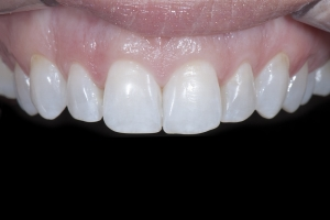 Tina Teeth Whitening X121 Post 0009