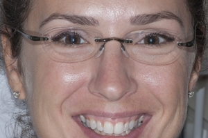 Tina Teeth Whitening F B4  0125 copy