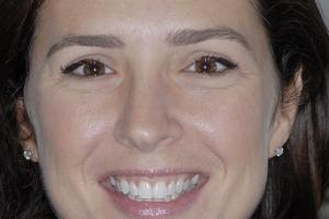 Tina Teeth Whitening F Post 0005 copy