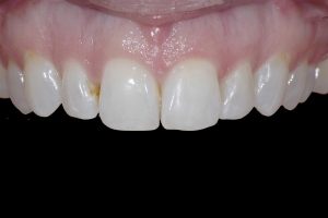 Tina Teeth Whitening X121 B4 0126