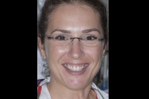 Tina Teeth Whitening F B4  0125