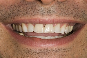 Tom Veneers & Crowns For Men S B4 copy