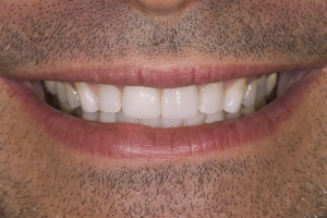 Tom Veneers & Crowns For Men S Post 151