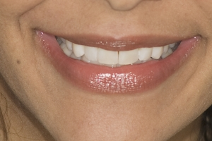 Tracy Teeth Whitening F After 0019