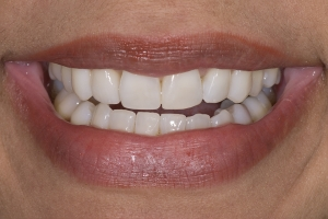 Tracy Teeth Whitening S After 0020
