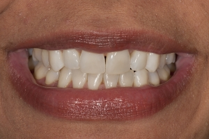 Tracy Teeth Whitening S  Before 0016