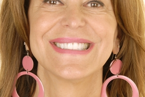 Valerie Teeth Whitening F After 0949 b