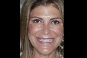 Valerie Teeth Whitening F  Before 8193