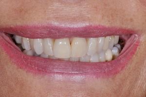 Valerie Teeth Whitening S  Before 8183