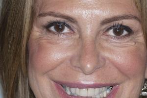 Valerie Teeth Whitening F  Before 8193 copy