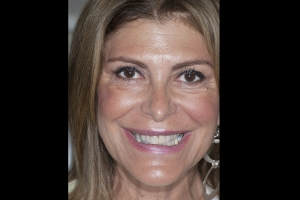 Valerie Teeth Whitening F  Before 8193