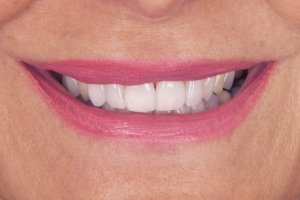 Valerie Teeth Whitening S After 0839 (1)