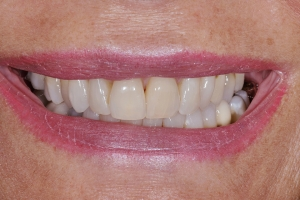 Valerie Teeth Whitening S  Before 8183