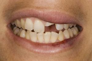 Veronica Broken Tooth S B4 (1)