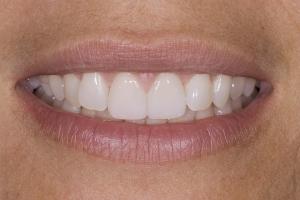 Veronica Broken Tooth S Post 005