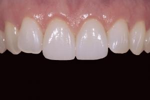 Veronica Broken Tooth X3 After 0089